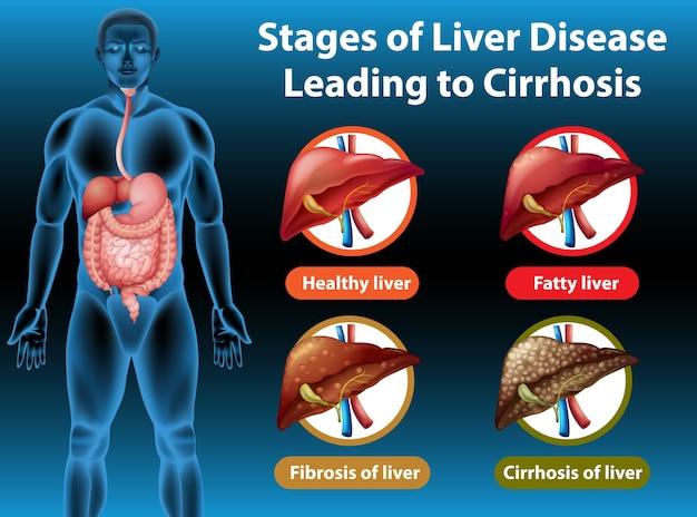 Стадии заболевания печени, приводящей к циррозу
