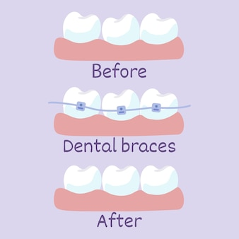 Stages of teeth alignment before and after with brackets correction of teeth with orthodontic braces