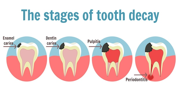 The stages of tooth decay infographic. illustration of tooth with caries, pulpitis and periodontitis