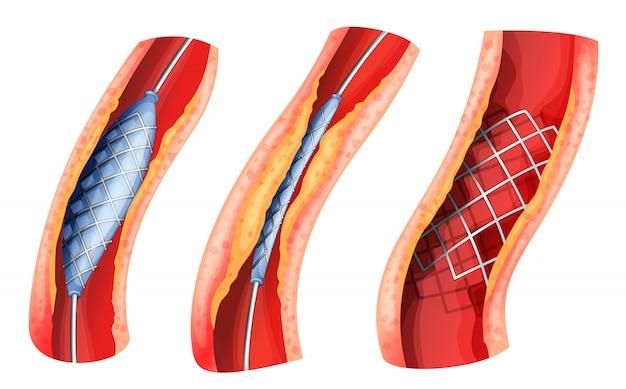 막힌 동맥을 여는 데 사용되는 스텐트 프리미엄 벡터