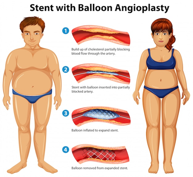 Stent with balloon angioplasty