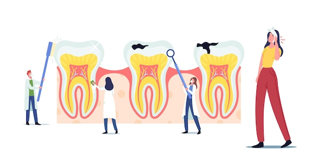 Stomatology, dentistry concept. tiny dentists characters cleaning, treating huge unhealthy tooth with caries cavity. doctors work together brushing, clean plaque. cartoon people vector illustration