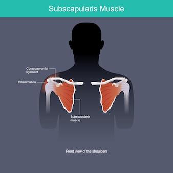 肩甲下筋。正面から見た肩の筋肉の炎症。