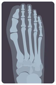 인간의 오른발 또는 사지의 우수한 방사선 사진. 중족골과 발가락의 X선 사진 또는 방사선 모니터 이미지, 위쪽 보기. 의료 방사선학. 평면 스타일의 흑백 벡터 일러스트 레이 션 프리미엄 벡터