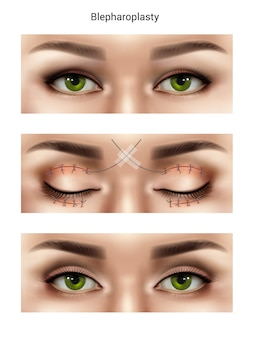 Surgical suture stitches realistic composition with images of female eyes at different stages of blepharoplasty procedures