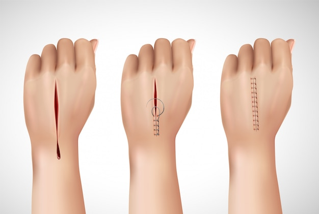 Surgical suture stitches realistic composition with isolated images of human hand at different stages of stitching