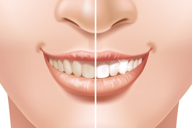Teeth before and after whitening treatment.