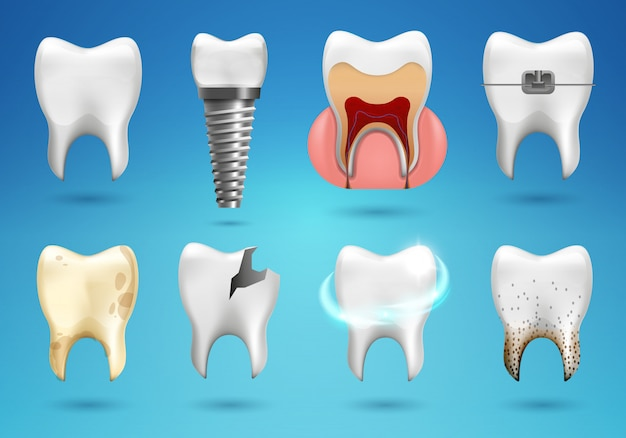Teeth big set in 3d realistic style. realistic healthy tooth, dental implant, caries, calculus, braces.