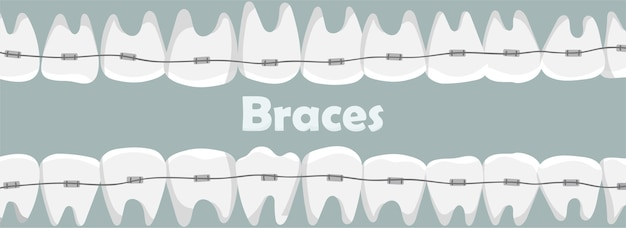 Teeth in braces with the inscription