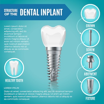 Teeth maquette. structural elements of dental implant. infographic for medicine