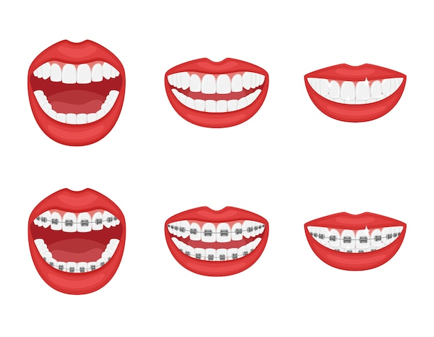 Teeth in the mouth with or without braces.open and closed mouth with red lips.