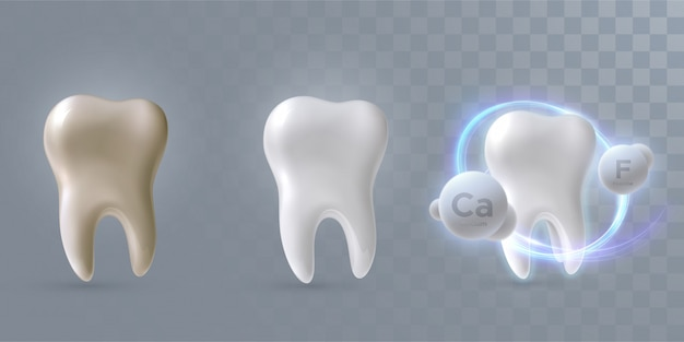 Teeth set from clean to dirty process, isolated on light yellow background, 3d illustration