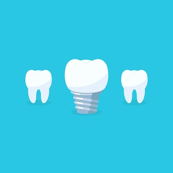 Зубы с зубными имплантатами иконы на синем backgrund. зубной символ стоматологической клиники. векторная иллюстрация eps 10