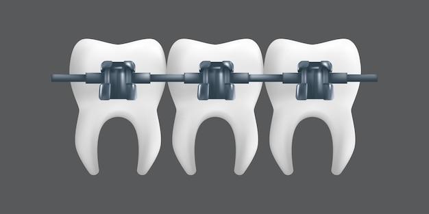금속 교정기가있는 치아. 교정 치료 개념. 회색 배경에 고립 된 치과 세라믹 모델의 현실적인 그림