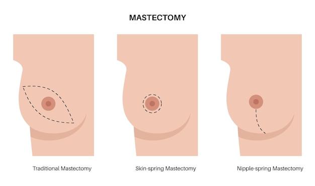 유방암 인식의 달
