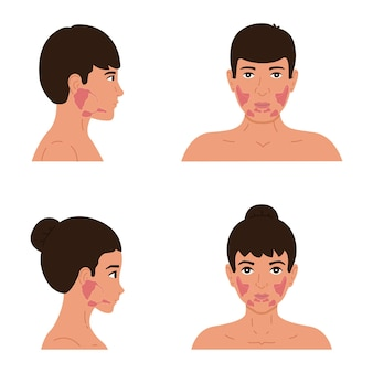 男性と女性の体の耳下腺、顎下腺、舌下腺の位置。唾液腺の平らなイラスト