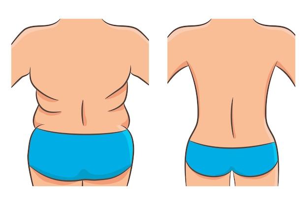두껍고 얇은 과체중 문제 개념. 뚱뚱하고 마른 어깨, 등과 엉덩이가 있는 여성의 몸통. 다이어트, 피트니스 또는 지방 흡입 전후로 돌아갑니다. 여자 후면의 벡터 일러스트 레이 션, 절연