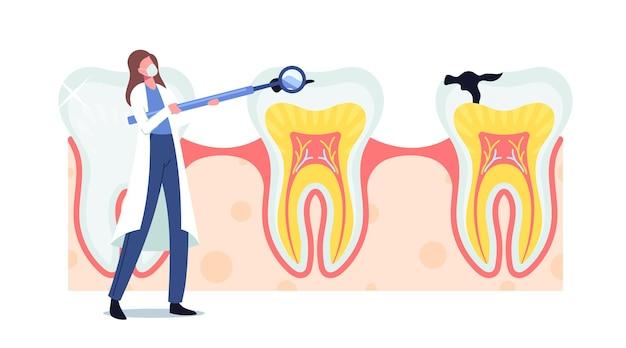 Крошечный стоматолог женщина-врач персонаж в халате держит стоматологическое зеркало уход за огромным зубом