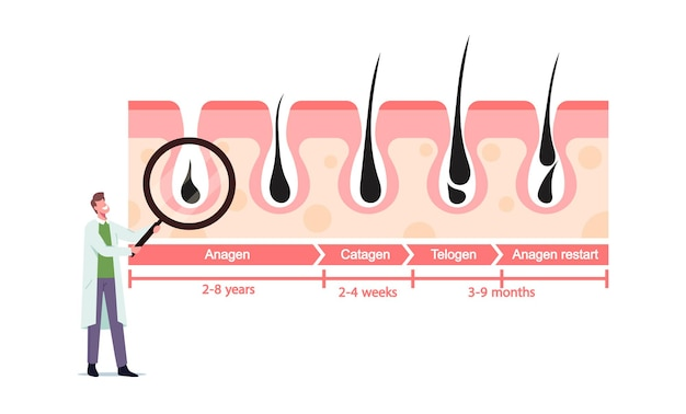 髪の成長と喪失のサイクルを表す医学のインフォグラフィックで巨大な虫眼鏡を使った小さな医者のキャラクター