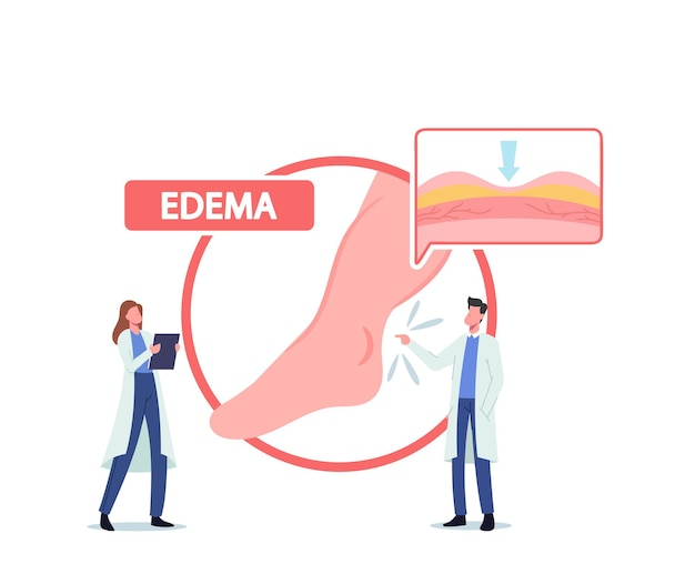 Tiny doctor characters presenting huge infographics with patient diseased legs, medical concept of edema, lymphedema