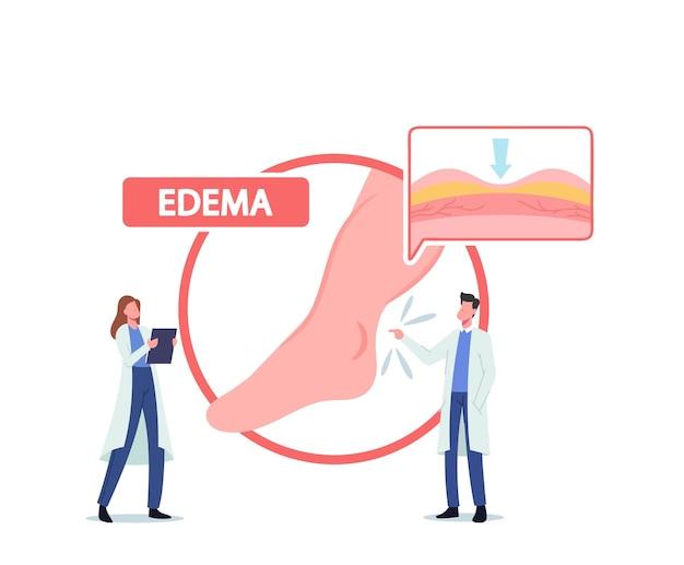환자의 아픈 다리, 부종의 의료 개념, 림프 부종의 거대한 인포 그래픽을 제시하는 작은 의사 캐릭터