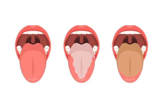 Язык с налетом и чистый язык