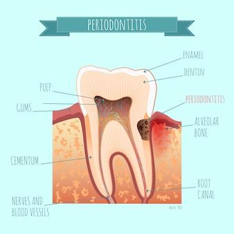 치아 해부학. 치주염