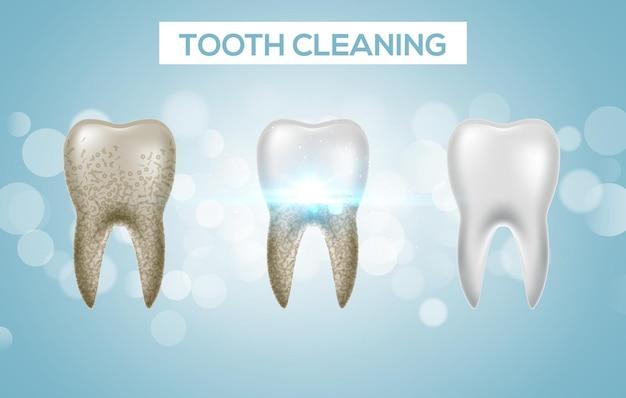 歯のクリーニング3dヘルス。歯科のリアルなダーティホワイトニング。歯科医の歯の衛生分離された薬のテンプレート。