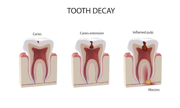 歯の損傷段階、リアルなイラスト
