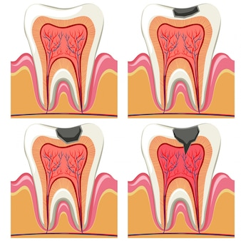Tooth decay diagram in details