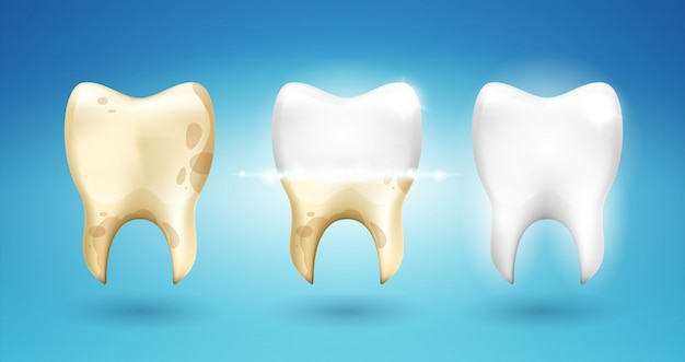 Tooth dental brushing in 3d style.