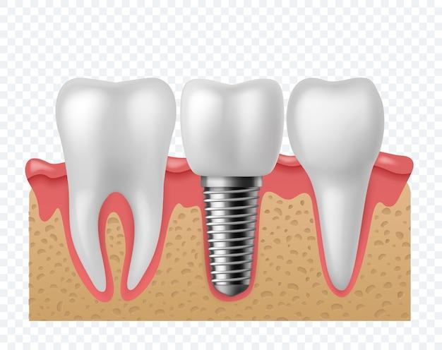 Зубной имплант. зубы человека и зубные имплантаты, ортодонтическая технология зубных протезов. имплантация искусственных зубов в стоматологии челюсти. стоматология вектор концепция изолированные o
