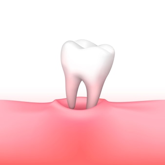 Tooth loss on white background. vector illustration