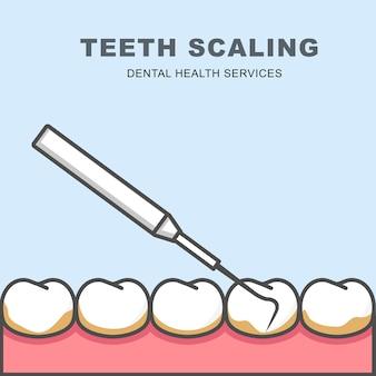 歯のスケーリングアイコン-歯の列、歯周プローブでクリーニング
