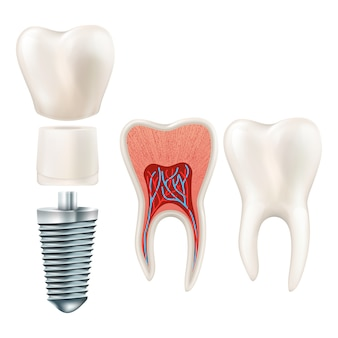 Tooth set. human realistic teeth and dental implant.