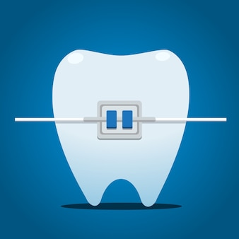 Tooth with metal braces. isolated vector illustration