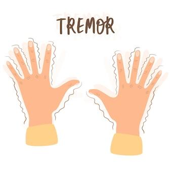 身震い。手に震える-精神障害、パニック、恐怖、パーキンソン病の症状。