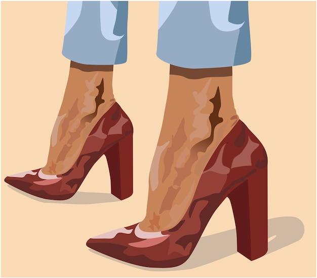 Две загорелые женские ноги в красных туфлях на высоких каблуках и голубых брюках