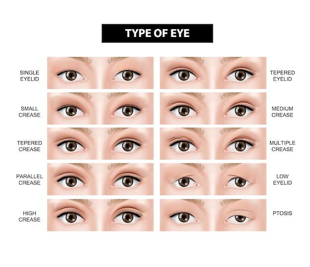 Type of eyelid crease illustration