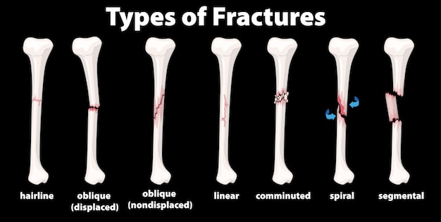 Type of fractures diagram