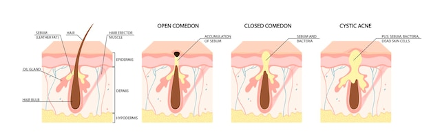 Types of acne open comedones closed comedones inflammatory acne cystic acne