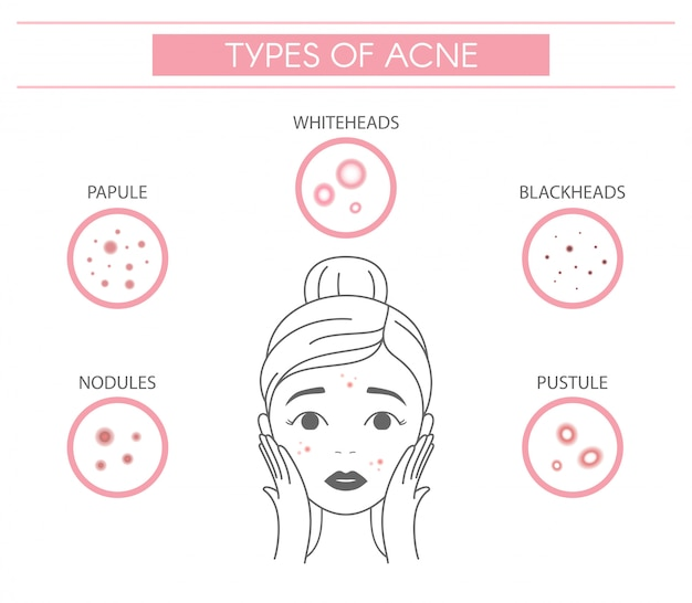 Types of acne, pimples nodules, papule, whiteheads, blackheads, pustule.