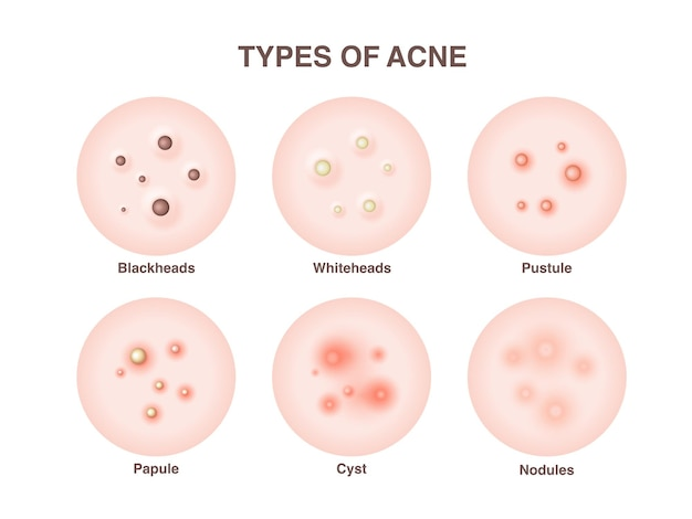 Types of acne, pimples, skin pores, blackhead, whitehead, scar, comedone.  icons of skin acne pimples, cosmetology and skincare problems.