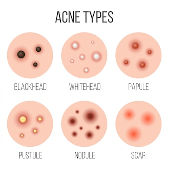 Types of acne, pimples in skin pores