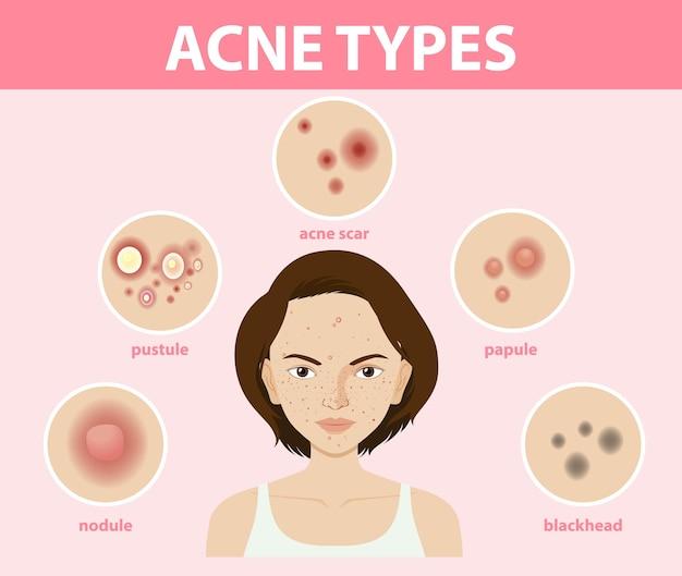 Tipi di acne sulla pelle o brufoli