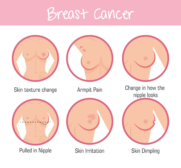 Types of appearances of the breast