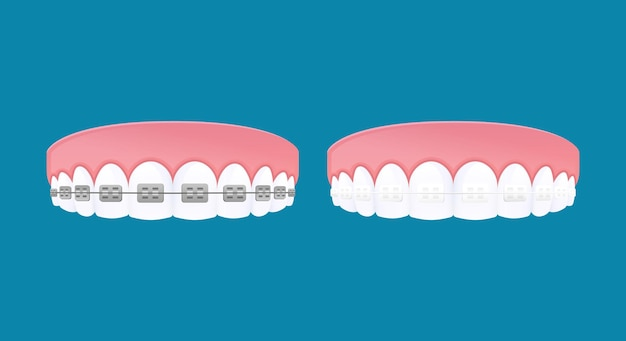 Types of braces system. metal and clear brackets teeth.