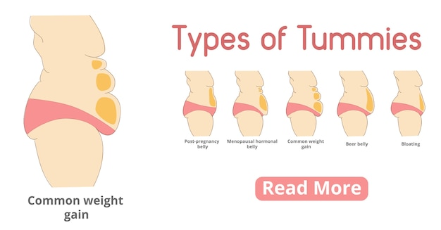 Types of female tummies banner. tummy tuck surgery or abdominoplasty . post-pregnancy, menopausal hormonal belly, beer belly, bloating belly, common weight gain belly.