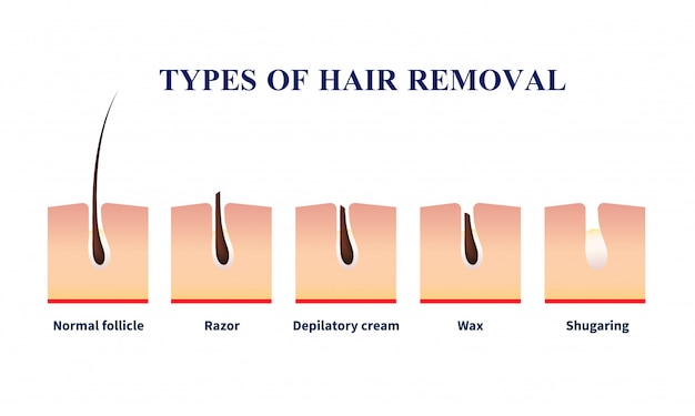 Types of hair removal illustration