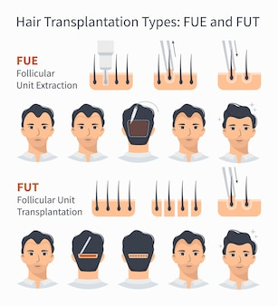 Types of hair transplant illustration
